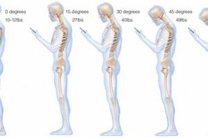 Texting Leads To Neck Pain